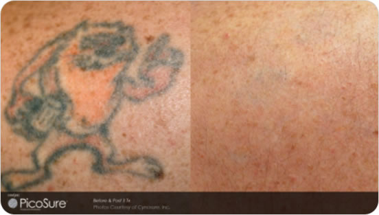 Pico Laser Tattoo Removal