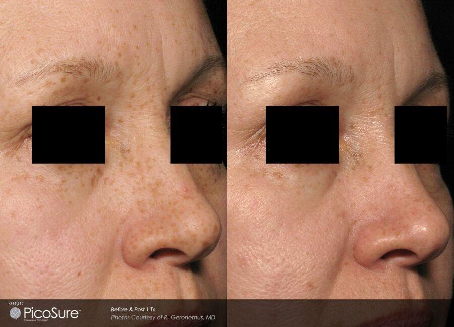 taylor-clinic-pico-picosure-skin-pigmenation-laser