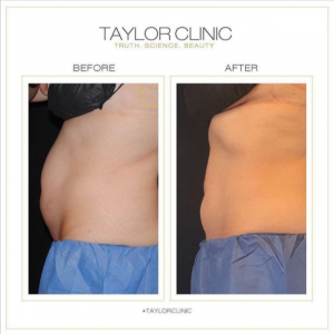 Sydney CoolSculpting before and after