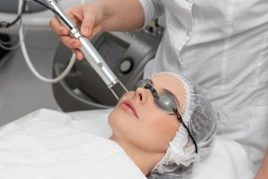 skin laser treatments sydney