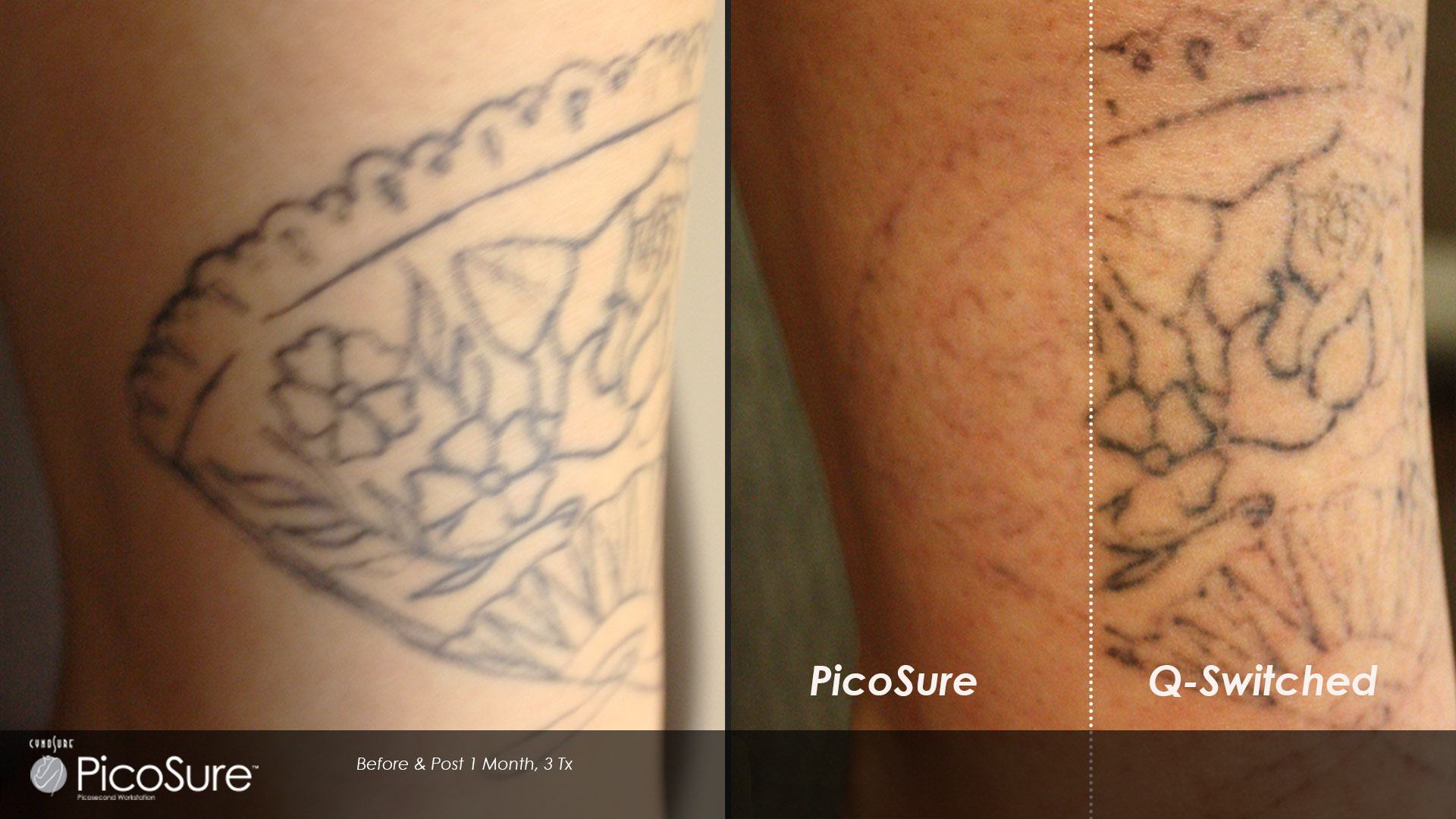 picosure laser tattoo removal sydney pico laser