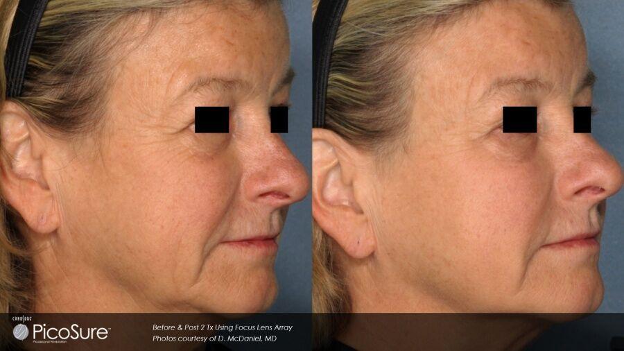 Phoenix facial line reduction