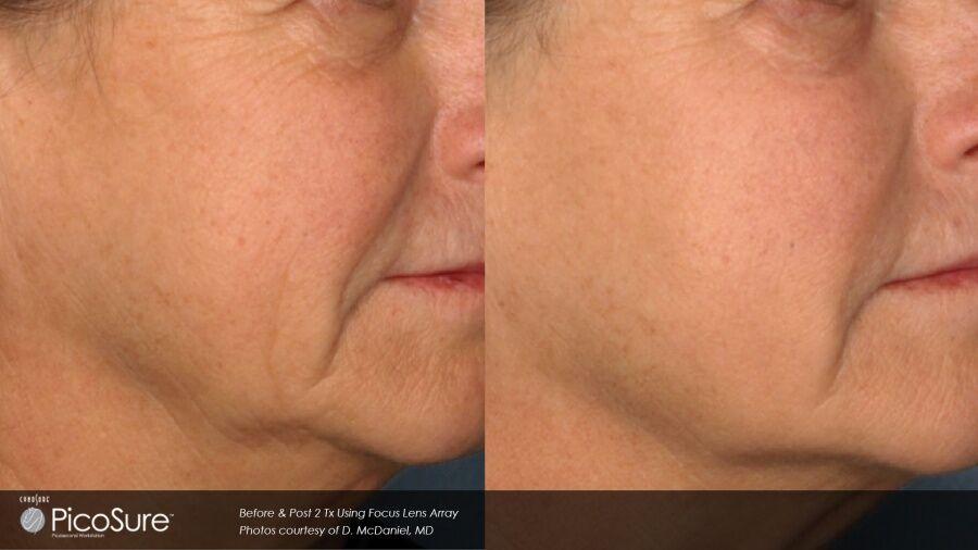taylor-clinic-skin-ppigmentation-removal-pico-picosure-laser