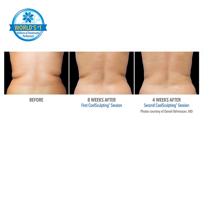 Coolsculpting Price 6 Embarrassing Body Bulge Corrections