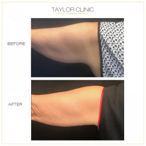 CoolSculpting arms before and after