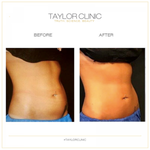 CoolSculpting Sydney Before and after