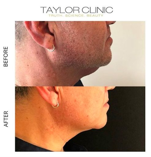Chin up - Fat Dissolving Injections Special